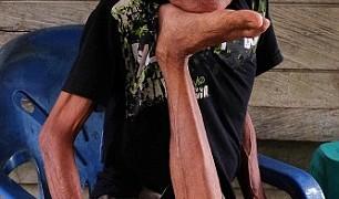 膝を自由に動かせる軟体タコ人間が現る